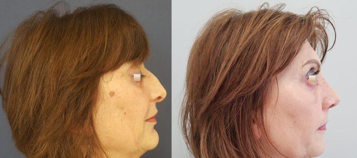 chirurgie-estetica-olimpiu-harceaga-rinoplastie-cluj-caz-1-2
