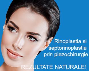 Rinoplastie Cluj, Sibiu - Dr. Olimpiu Harceaga