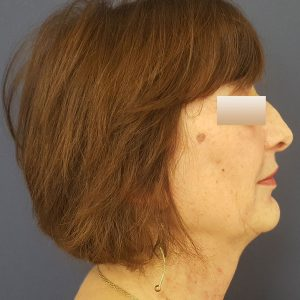 Rinoplastie, Pacient 1