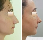 Rhinoplasty, Patient 11