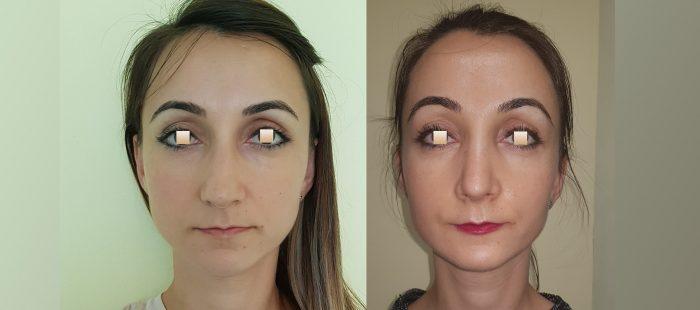 chirurgie-estetica-olimpiu-harceaga-rinoplastie-cluj-caz-11-1