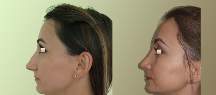 chirurgie-estetica-olimpiu-harceaga-rinoplastie-cluj-caz-11-3
