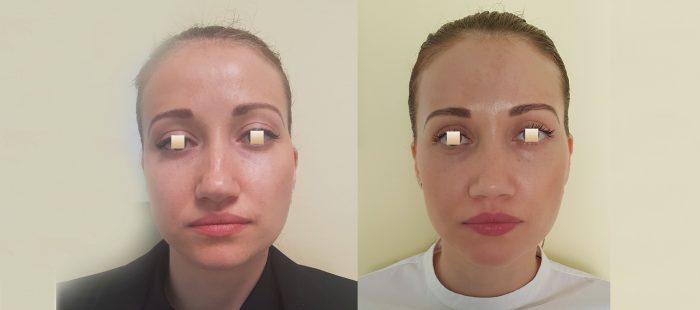 chirurgie-estetica-olimpiu-harceaga-rinoplastie-cluj-caz-3-1