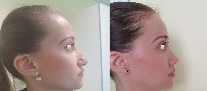 chirurgie-estetica-olimpiu-harceaga-rinoplastie-cluj-caz-3-2