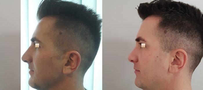 chirurgie-estetica-olimpiu-harceaga-rinoplastie-cluj-caz-4-3