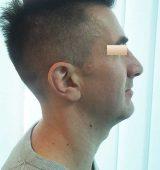 Rhinoplastik, Patient 4