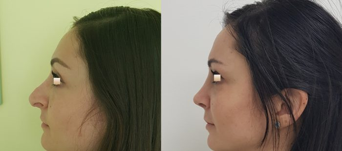 chirurgie-estetica-olimpiu-harceaga-rinoplastie-cluj-caz-6-2
