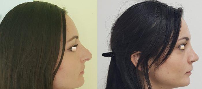 chirurgie-estetica-olimpiu-harceaga-rinoplastie-cluj-caz-6-3