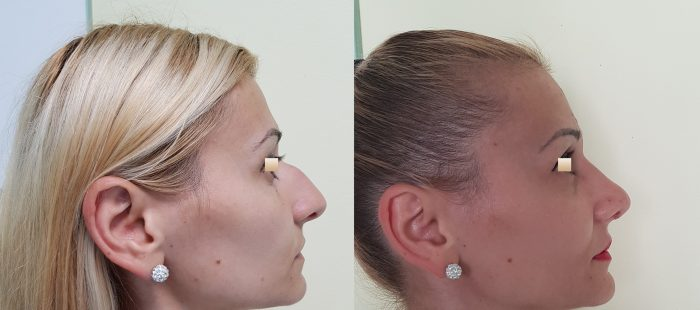 chirurgie-estetica-olimpiu-harceaga-rinoplastie-cluj-caz-8-2
