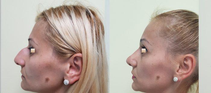 chirurgie-estetica-olimpiu-harceaga-rinoplastie-cluj-caz-8-3