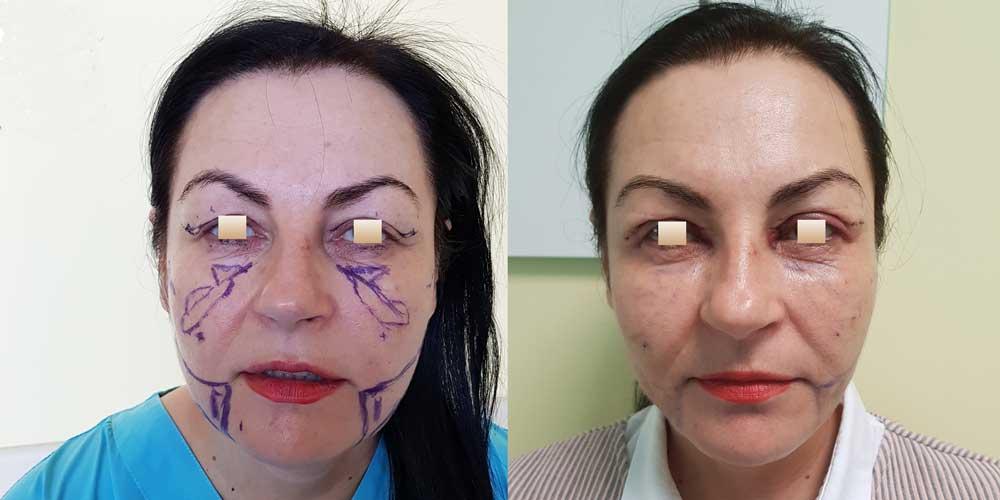 Liquid facelift, Pacient 2