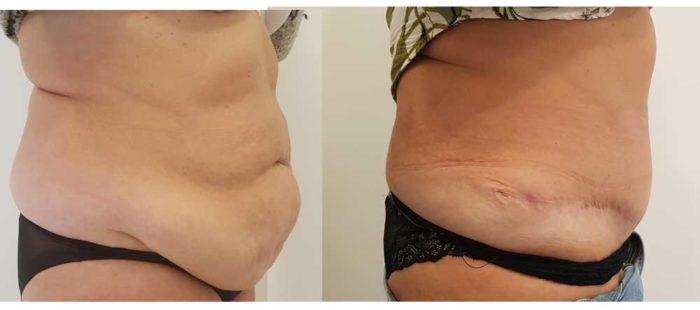 chirurgie-estetica-olimpiu-harceaga-abdominoplastie-caz-1-3