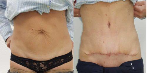 chirurgie-estetica-olimpiu-harceaga-abdominoplastie-caz-4-1