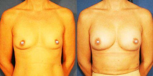 chirurgie-estetica-olimpiu-harceaga-augmentare-grasime-caz-2a