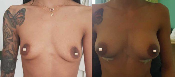 chirurgie-estetica-olimpiu-harceaga-augmentare-implant-caz-1-2