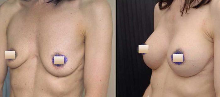 chirurgie-estetica-olimpiu-harceaga-augmentare-implant-caz10-1