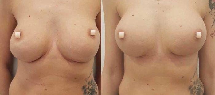 chirurgie-estetica-olimpiu-harceaga-augmentare-implant-caz3-1