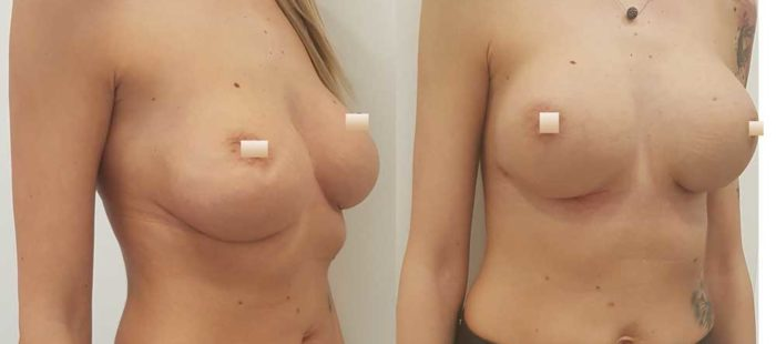 chirurgie-estetica-olimpiu-harceaga-augmentare-implant-caz3-3