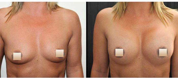chirurgie-estetica-olimpiu-harceaga-augmentare-implant-caz7-1