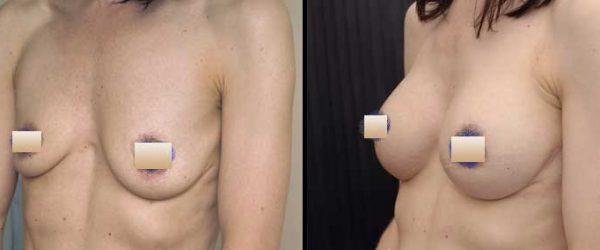 chirurgie-estetica-olimpiu-harceaga-augmentare-mamara-caz-10