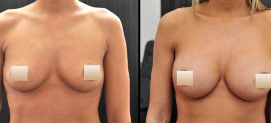 chirurgie-estetica-olimpiu-harceaga-augmentare-mamara-caz-6