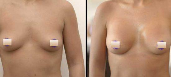 chirurgie-estetica-olimpiu-harceaga-augmentare-mamara-caz-8