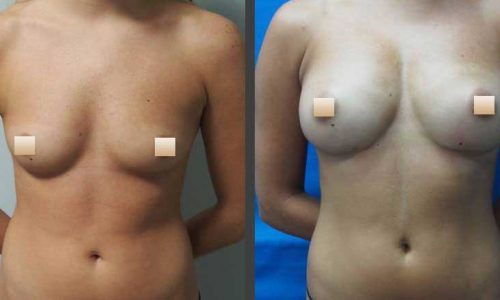 chirurgie-estetica-olimpiu-harceaga-augmentare-mamara-cu-grasime-caz1