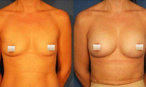 chirurgie-estetica-olimpiu-harceaga-augmentare-mamara-cu-grasime-caz2