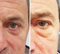 chirurgie-estetica-olimpiu-harceaga-blefaroplastie-caz1-(1)