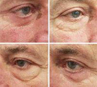 chirurgie-estetica-olimpiu-harceaga-blefaroplastie-caz1-(2)