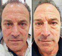 chirurgie-estetica-olimpiu-harceaga-blefaroplastie-caz1-(3)