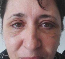 chirurgie-estetica-olimpiu-harceaga-blefaroplastie-caz2-(1)
