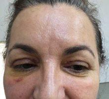 chirurgie-estetica-olimpiu-harceaga-blefaroplastie-caz3-(1)