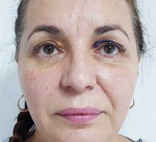 chirurgie-estetica-olimpiu-harceaga-blefaroplastie-caz3-(2)