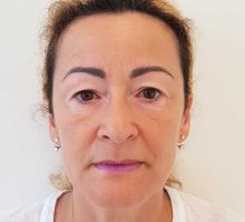 chirurgie-estetica-olimpiu-harceaga-blefaroplastie-caz4-(2)