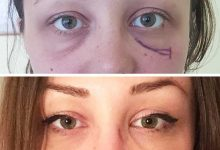 chirurgie-estetica-olimpiu-harceaga-blefaroplastie-caz5-(1)