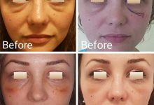 chirurgie-estetica-olimpiu-harceaga-blefaroplastie-caz5-(3)
