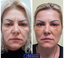 chirurgie-estetica-olimpiu-harceaga-blefaroplastie-caz6
