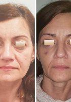 chirurgie-estetica-olimpiu-harceaga-blefaroplastie-caz7-(1)