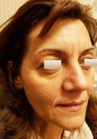 chirurgie-estetica-olimpiu-harceaga-blefaroplastie-caz7-(2)