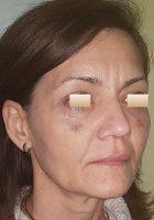 chirurgie-estetica-olimpiu-harceaga-blefaroplastie-caz7-(5)