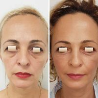 chirurgie-estetica-olimpiu-harceaga-blefaroplastie-caz8-(5)