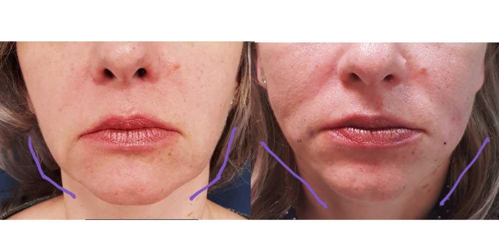 Minilifting facial, Pacient 1