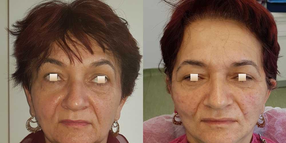 Minilifting facial, Pacient 2