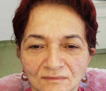 chirurgie-estetica-olimpiu-harceaga-lifting-facial-caz2-(1)