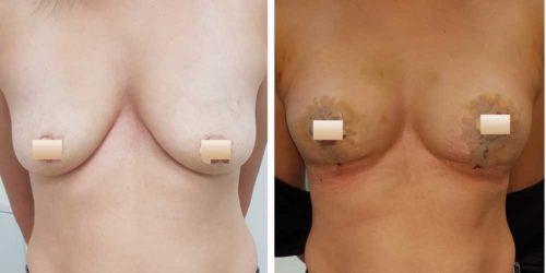 chirurgie-estetica-olimpiu-harceaga-lifting-mamar-caz1-1