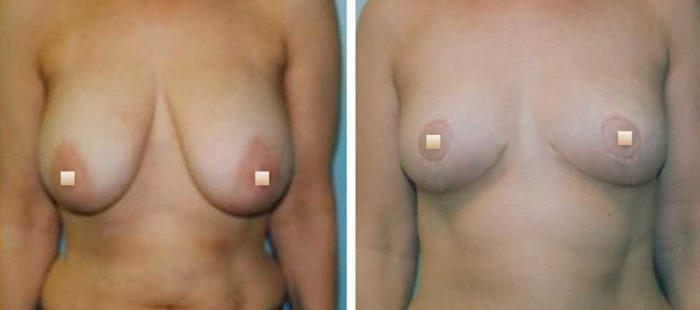 chirurgie-estetica-olimpiu-harceaga-lifting-mamar-caz3-1
