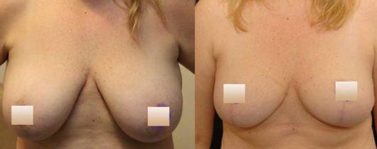 chirurgie-estetica-olimpiu-harceaga-lifting-mamar-caz5-1