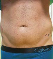 chirurgie-estetica-olimpiu-harceaga-liposuctie-caz2 (2)