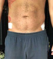 chirurgie-estetica-olimpiu-harceaga-liposuctie-caz2 (3)